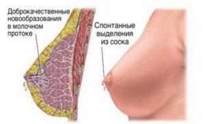 Внутрипротоковоя папиллома