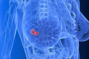 Опасна ли обнаруженная на маммографии узелковая фиброаденома?