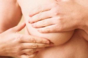 Что такое фиброаденома молочной железы и как ее лечить?
