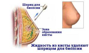 Лечение кисты пункцией