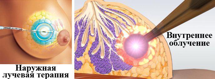 Лучевая терапия - лечение рака молочной железы