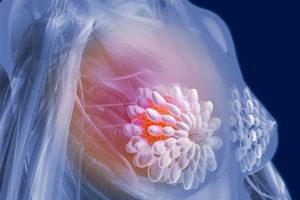 Каковы прогнозы при раке молочной железы на 1, 2, 3 и 4 стадии?