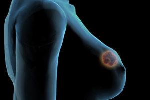 Признаки диффузного фиброаденоматоза молочных желез