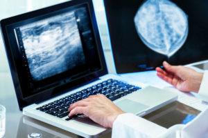 Кому назначают дуктографию молочных желез и как проходит обследование?