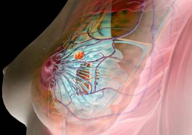 Формы узловой мастопатии