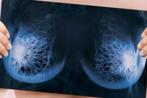 Кальцинаты у женщины в грудной железе — причины и лечение