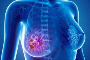 Что такое и сколько проживет человек при карциноме груди?