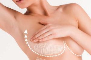 Какие методы помогут подтянуть грудь?
