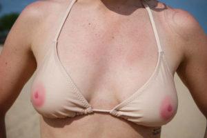 Почему шелушится кожа на груди и сосках?