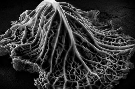 Лечение мастопатии с помощью капустного листа