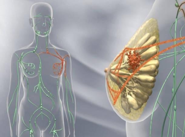 Что такое опухоли