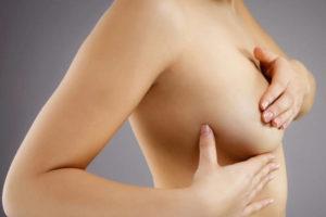 Необходимость проведения операции по удалению фиброаденомы молочной железы