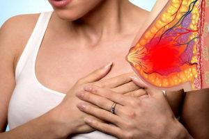 Актиномикоз – грибковое воспаление молочных желез