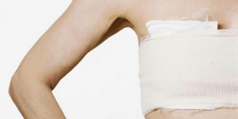От подготовки до реабилитации после мастэктомии – удаления молочной железы