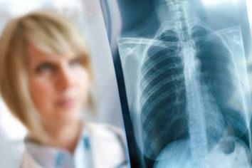 Какую опасность таит туберкулез груди?