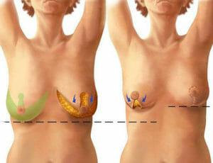 Современная операция по уменьшению груди