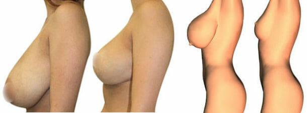 Уменьшение груди с подтяжкой