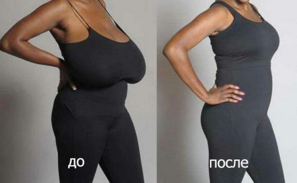 Фото до и после операции по уменьшению молочной железы
