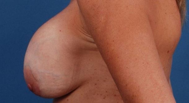 Контрактура молочной железы
