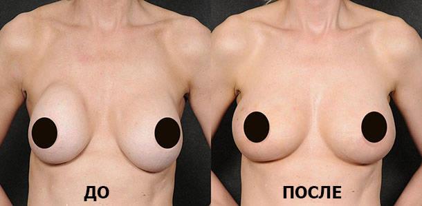 Фото до и после капсулярной контрактуры
