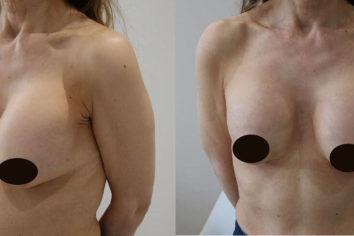 Признаки и способы устранения капсулярной контрактуры после маммопластики