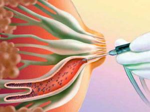 Диагностика вен на молочной железе
