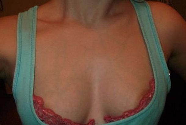 Лечение вен на груди