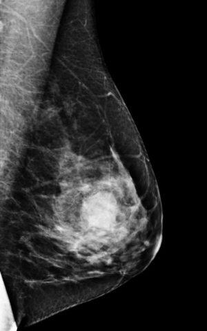 Результат томосинтеза молочной железы