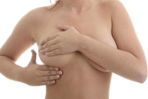 Всё что нужно знать о причинах и последствиях появления шишек в груди у женщин